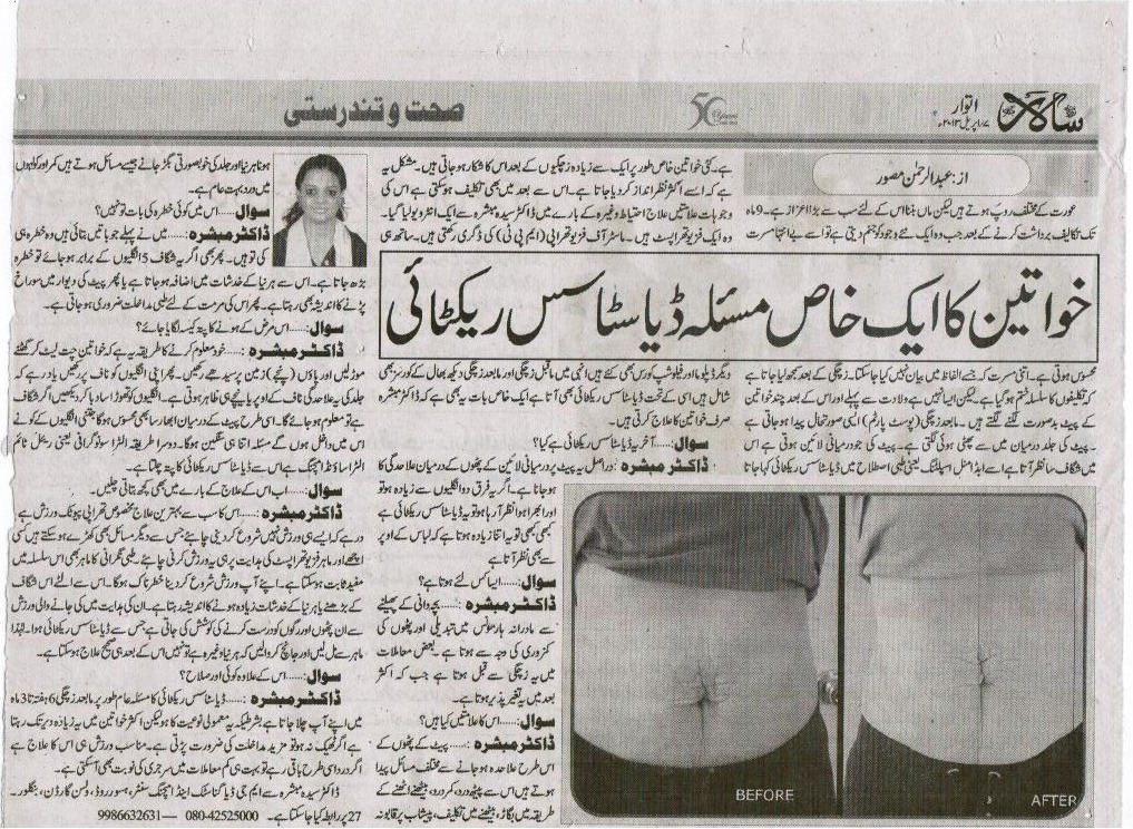 Article on Diastasis Recti