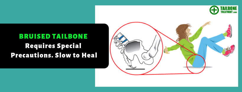 Bruised Tailbone | Fractured Tailbone | Tailbone TreatmentBruised Tailbone | Fractured Tailbone | Tailbone Treatment
